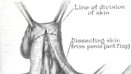 Hand drawn diagram of a Gender Reassignment Surgical Procedure